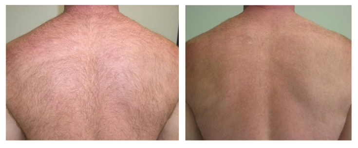 back-before-after-laser-hair-removal-2