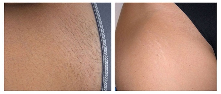 Before And After Renova Laser Hair Removal Amp Medspa