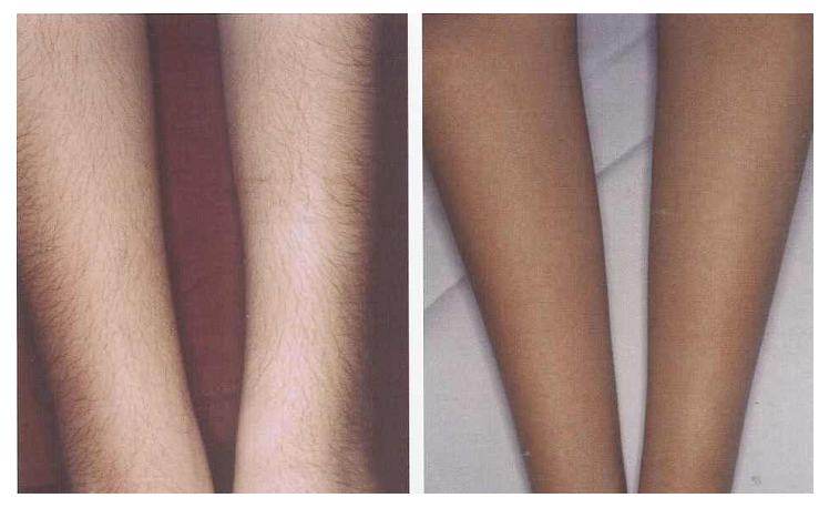 legs-before-after-laser-hair-removal-2.jpg
