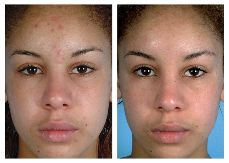 microdermabrasion-before-after-3