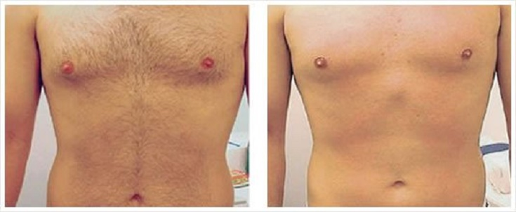 abs-before-after-laser-hair-removal