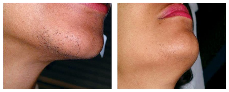 chin-before-after-laser-hair-removal