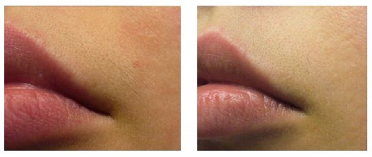 lip-before-after-laser-hair-removal