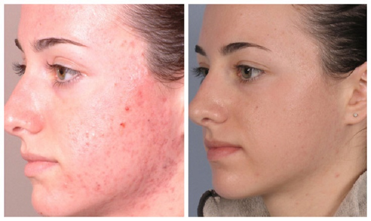 microdermabrasion-before-after-1