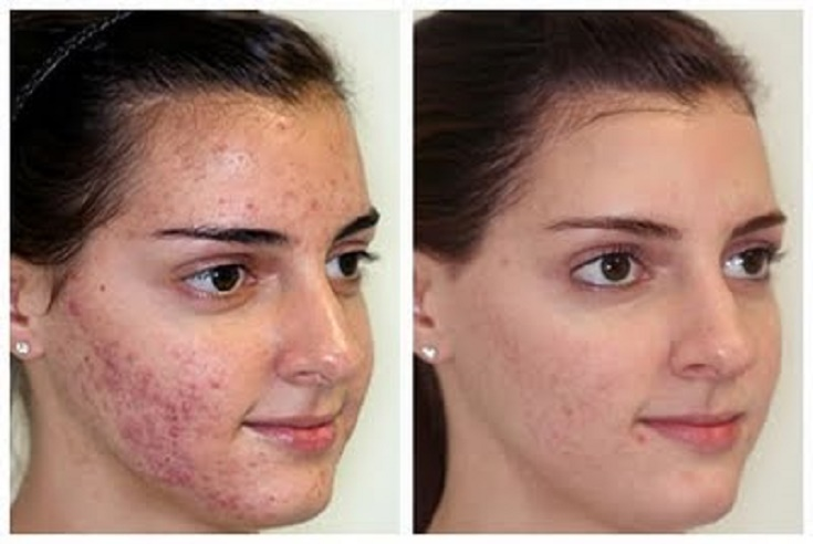 microdermabrasion-before-after-2