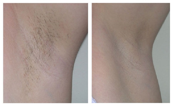 underarms-before-after-laser-hair-removal